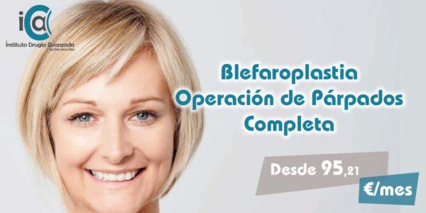 Blefaroplastia Completa – Operación de Párpados Superiores e Inferiores