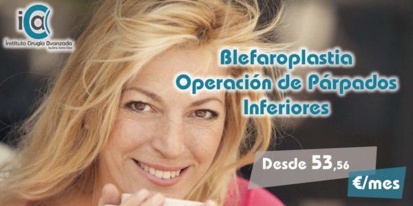 Blefaroplastia Inferior – Operación de Párpados Inferiores