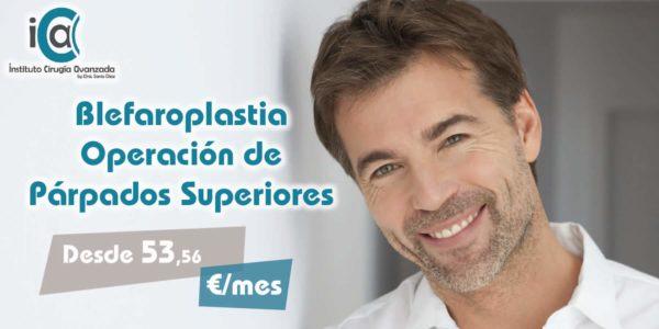 Blefaroplastia Superior – Operación de Párpados Superiores
