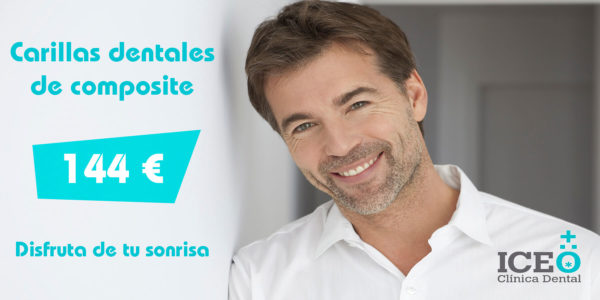 Carilla Dental de Composite